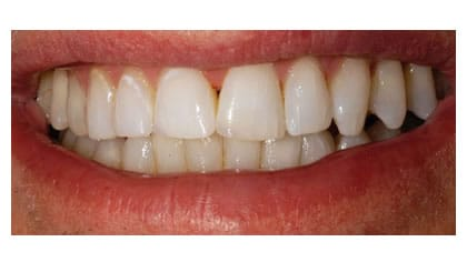 cosmetic teeth bonding- weybridge dentist